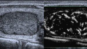 echographie thyroidienne actualites cytoponction echographie doppler paris imagerie paris 13 radiologie irm scanner radiographie echographie doppler osteodensitometrie senologie infiltration paris 13 2