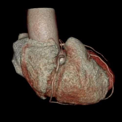 coroscanner scanner paris imagerie paris 13 radiologie irm scanner radiographie echographie doppler osteodensitometrie senologie infiltration paris 13 2