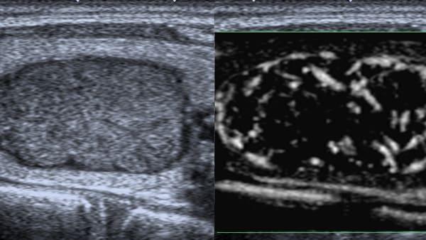 echographie thyroidienne cytoponction echographie doppler paris imagerie paris 13 radiologie irm scanner radiographie echographie doppler osteodensitometrie senologie infiltration paris 13 2