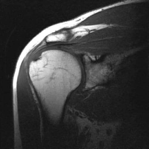 irm epaule irm paris imagerie paris 13 radiologie irm scanner radiographie echographie doppler osteodensitometrie senologie infiltration paris 13