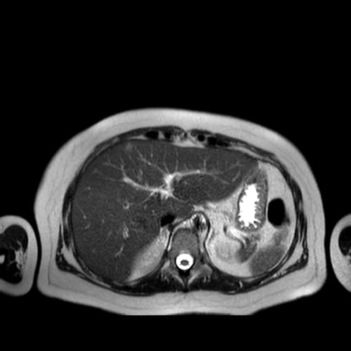 irm foie irm paris imagerie paris 13 radiologie irm scanner radiographie echographie doppler osteodensitometrie senologie infiltration paris 13