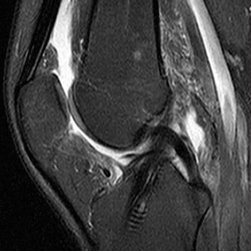 irm genou irm paris imagerie paris 13 radiologie irm scanner radiographie echographie doppler osteodensitometrie senologie infiltration paris 13 2