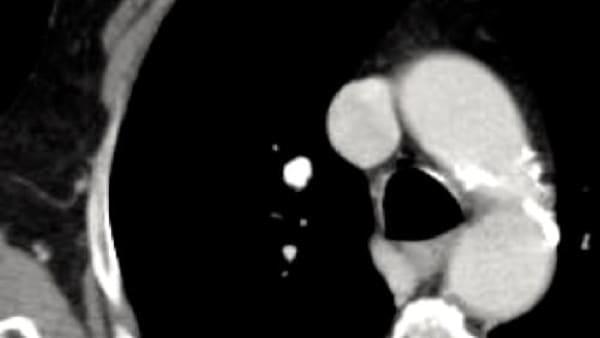nodule pulmonaire solitaire actualites cytoponction echographie doppler imagerie paris 13 radiologie irm scanner radiographie echographie doppler osteodensitometrie senologie infiltration paris 13 8