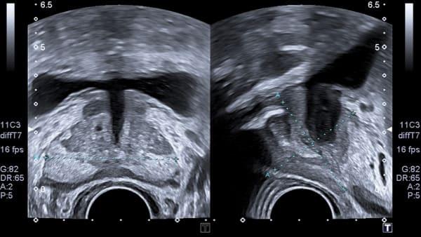 prostate imagerie masculine echographie doppler paris imagerie paris 13 radiologie irm scanner radiographie echographie doppler osteodensitometrie senologie infiltration paris 13 2