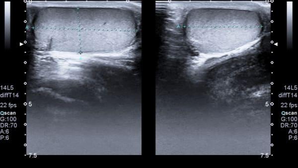 testicule droit imagerie masculine echographie doppler paris imagerie paris 13 radiologie irm scanner radiographie echographie doppler osteodensitometrie senologie infiltration paris 13