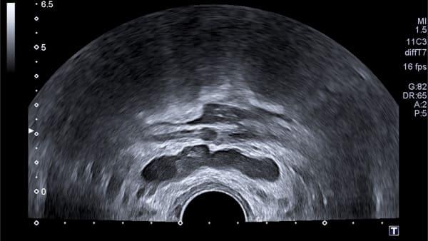 voies seminales imagerie masculine echographie doppler paris imagerie paris 13 radiologie irm scanner radiographie echographie doppler osteodensitometrie senologie infiltration paris 13